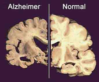Cerebro normal y cerebro con alzheimer