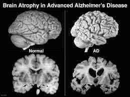 Cerebro sano y cerebro con alzheimer
